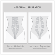 AbdominalSeparation_Vector