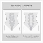 AbdominalSeparation_Vector